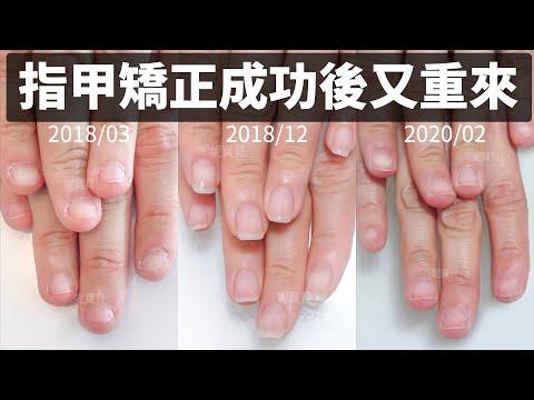 指甲矯正成功|但指緣保濕沒注意|之後又重新矯正的例子