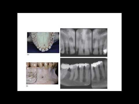 Dr . Mazen Doumani Basic Endodontics For Undergraduate students II