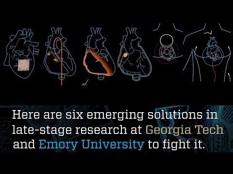 Mending a Broken Heart | Research Horizons | Georgia Tech's