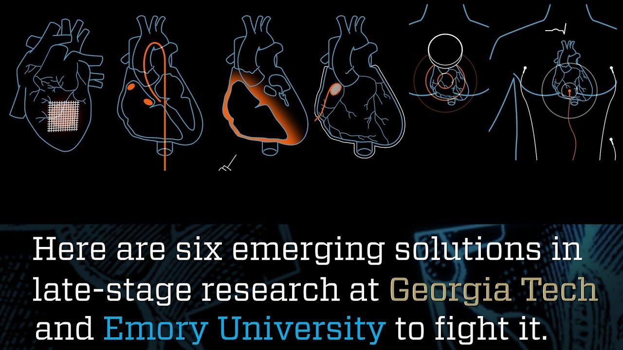 Mending a Broken Heart   Research Horizons   Georgia Tech's
