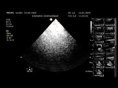 УЗИ сосудов головного мозга , ТКДС , УЗДГ сосудов головного мозга в клинике Чехрановых