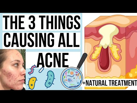 what-causes-pimples?-the-3-things-that-cause-pimples-(+-curing-acne-naturally)