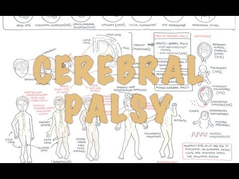 the causes signs and symptoms and treatment of cerebral palsy