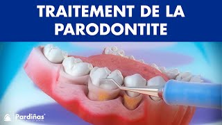 Curetage et détartrage - Traitement de la parodontite ©