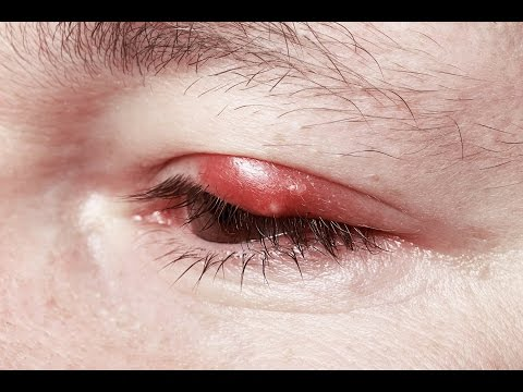 How To Get Rid Of Stye On Your Eyelid Fast Overnight