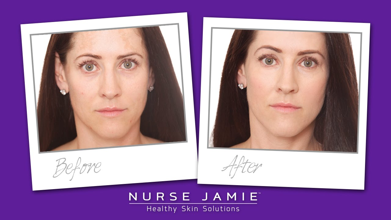 Best Way To Remove Brown Spots Nurse Jamie Youtube