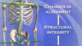 About the Atlas Orthogonal procedure