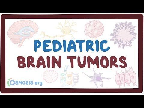 Pediatric Brain Tumors - Causes, Symptoms, Diagnosis, Treatment, Pathology