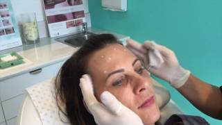 Anti-Wrinkle Relaxant Treatment for Forehead Lines, Frown Lines & Eye Lines