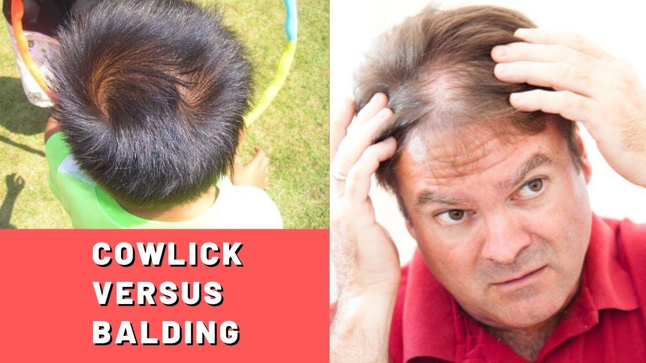 cowlick vs. balding: an early sign of hair loss? - hairguard