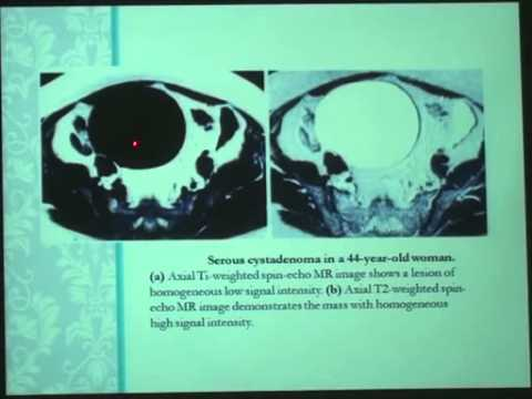 Role of advanced MRI techniques in evaluation of ovarian tumors thumbnail