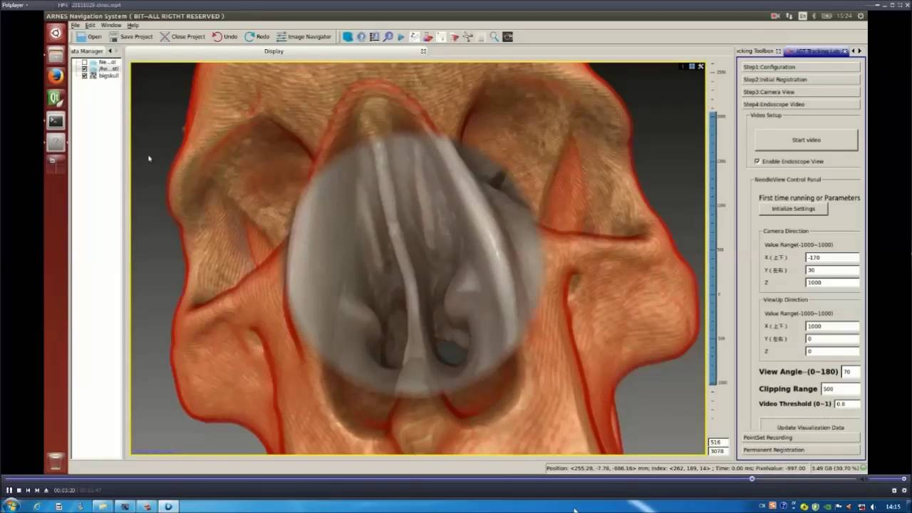 A Novel Augmented Reality Navigation System For Endoscopic Sinus And