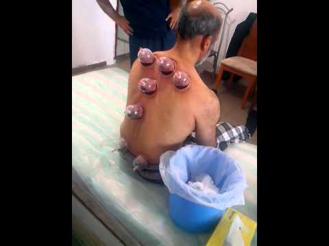 Hijama Wet Cupping Back Points Youtube