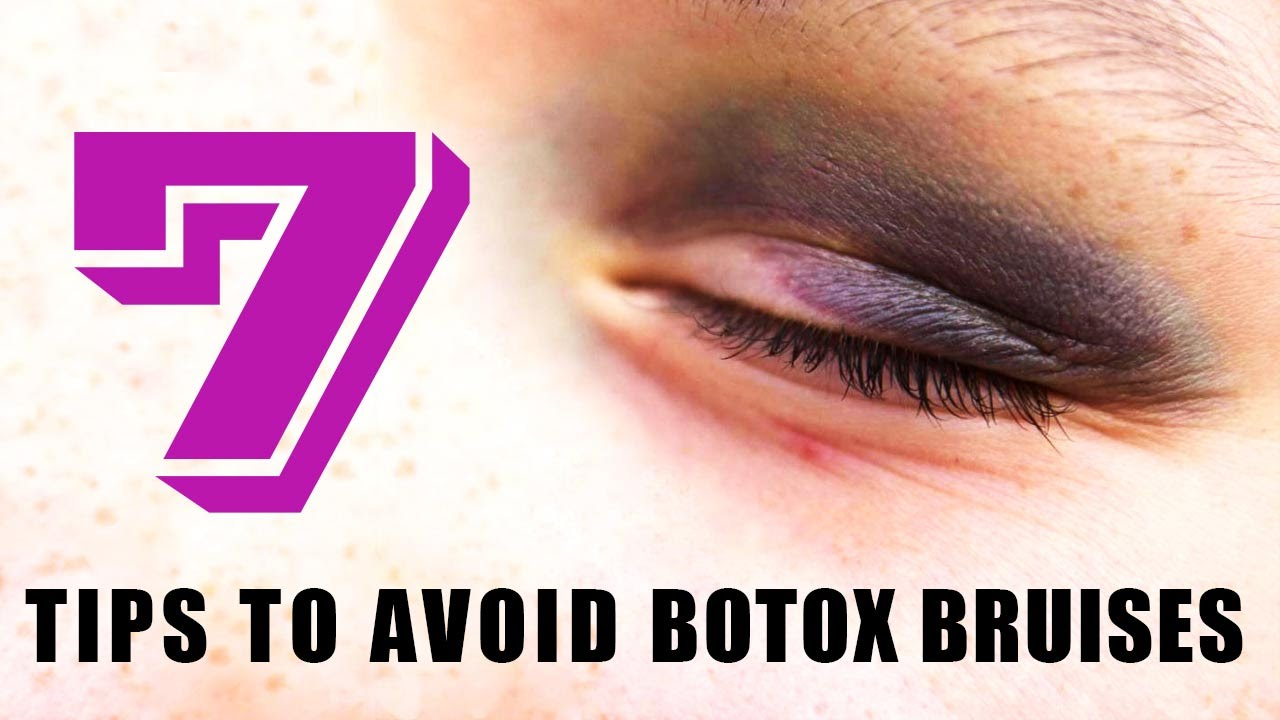 how to get rid of botox bruises