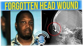 Woman Found Out What Really Happened with Her Head Injury (ft. Hok)