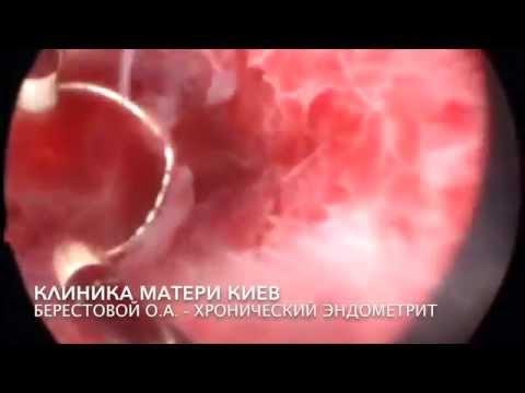 21+ Ужасная проблема матки хронический эндометрит, Кровяные водопады