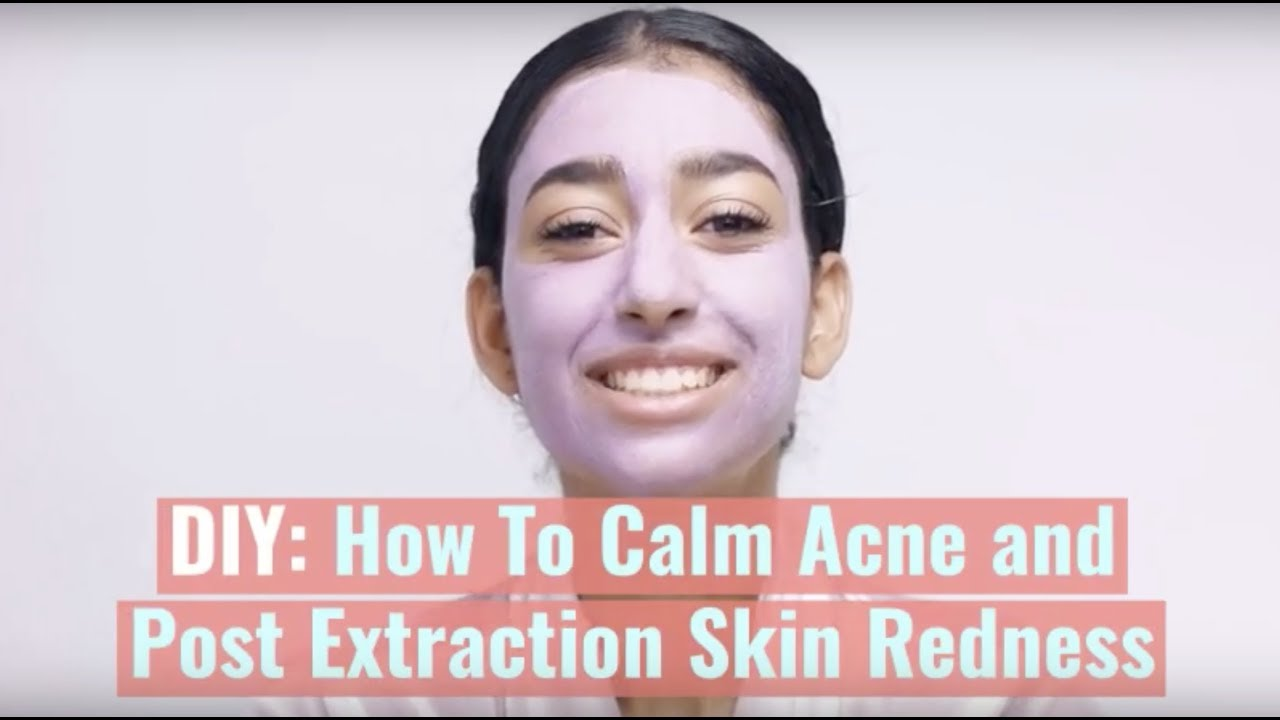 Diy How To Calm Acne And Post Extraction Skin Redness