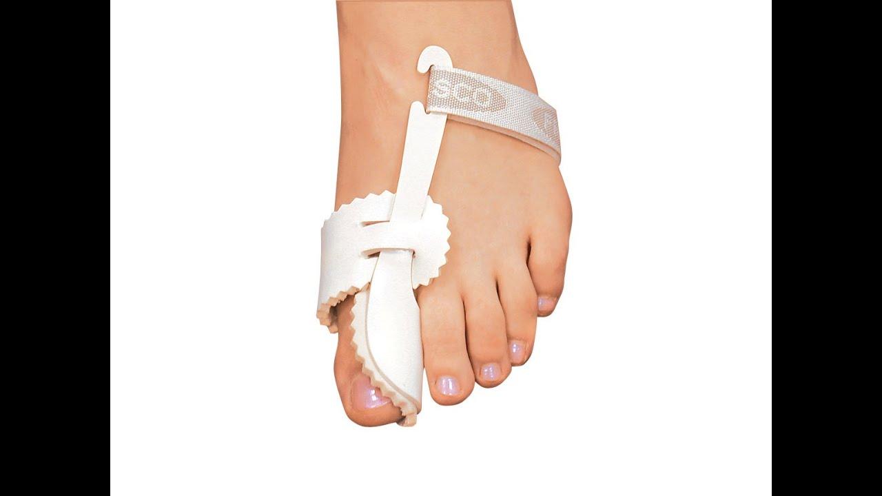 Шишки на ногах эффективное лечение