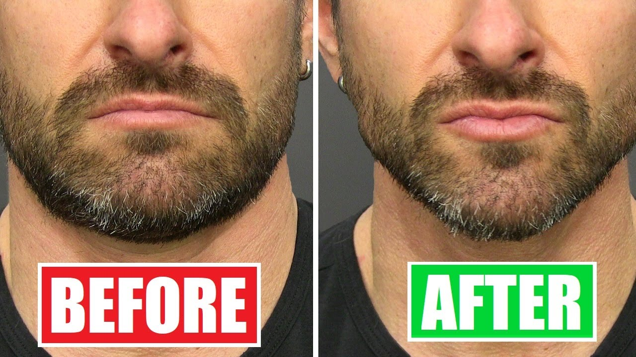 Do THIS to Lose Chubby Cheeks & Get a MORE Defined Face!