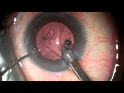 Cataract Surgery- No stitch/no injection 5 minutes- See better without glasses in some cases