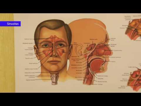 triukšmas galvoje su hipertenzija kaip gydyti