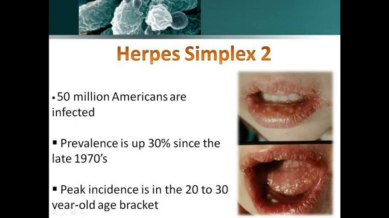Summary -> Hsv2 Vaccine Is It Close Herpes Cure Breakthrough