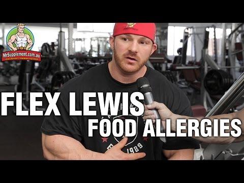 Flex Lewis Has Major Food Allergies