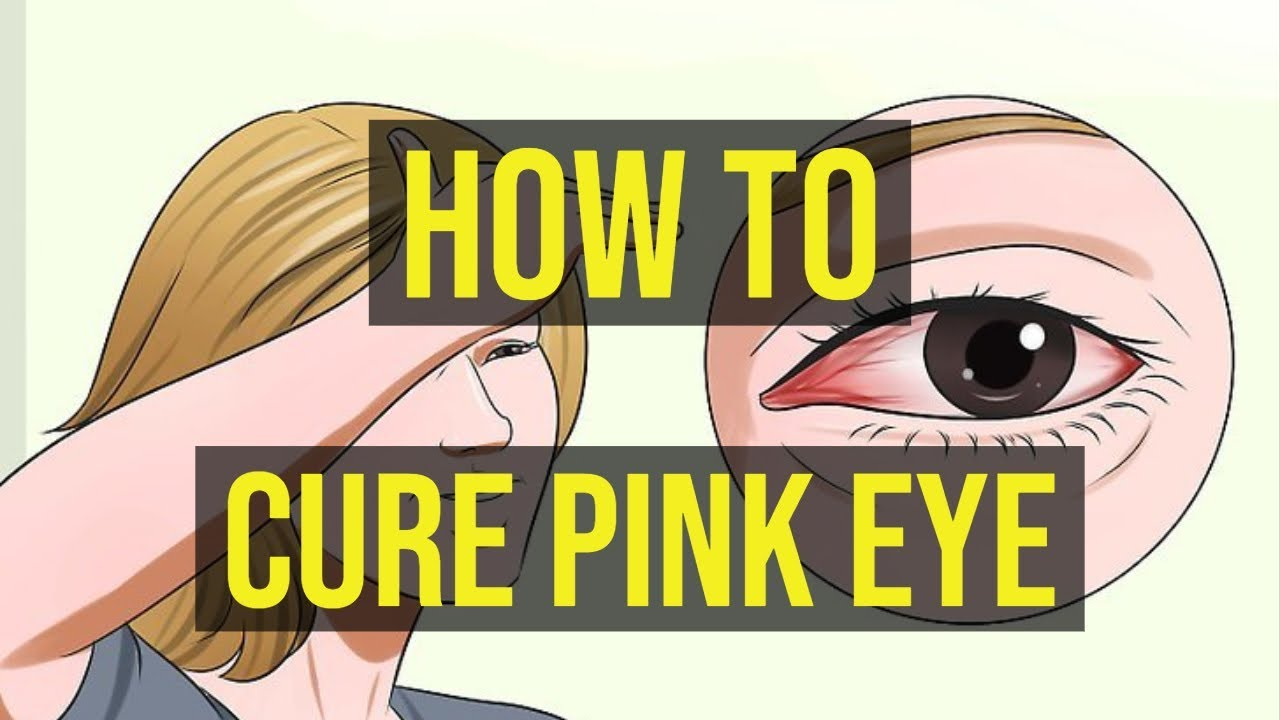 How To Get Rid Of Pink Eye In One Night