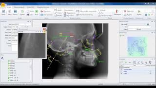 Ax.Ceph türkçe ortodonti sefalometrik film analiz programı bölüm 2