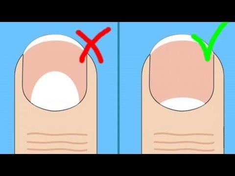 Как распознать болезнь по ногтям рук