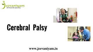 Cerebral Palsy Treatment in Ayurveda Kochi | Special School for Cerebral Palsy Kerala , India