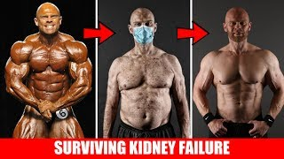 Insane Bodybuilding Transformation: Surviving Stage 5 Kidney Failure