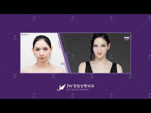"Best Korean ""JW"" plastic surgery clinic before and after videos"