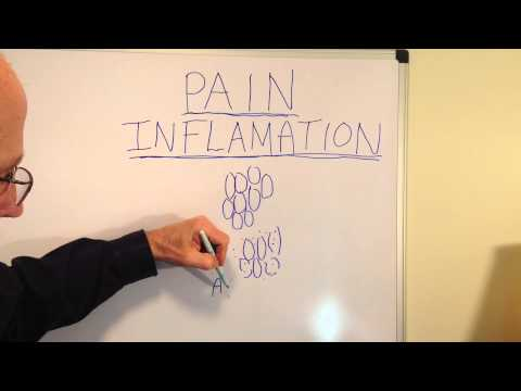 Back pain inflammation | Hermann Wellness | Chiropractor | Bloomington, IL