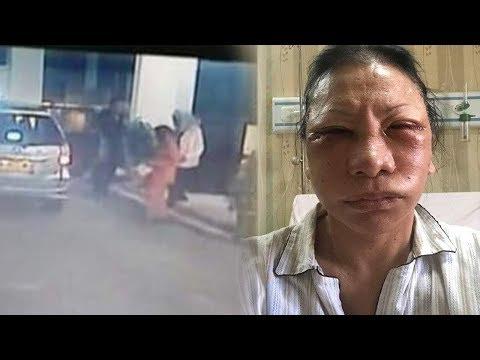 CCTV dan Bukti Transfer Jadi Modal Polda Ungkap Ratna Sarumpaet Tak Dianiaya, Tapi ke RS Bedah