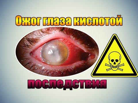 Ожог глаза кислотой - последствия