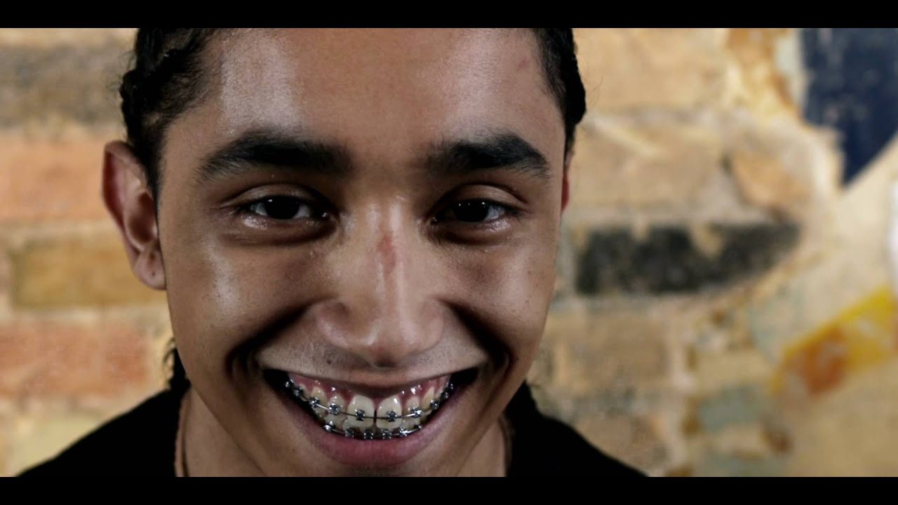 Royalty Free Stock Footage Of Young Man With Braces Stares -7571