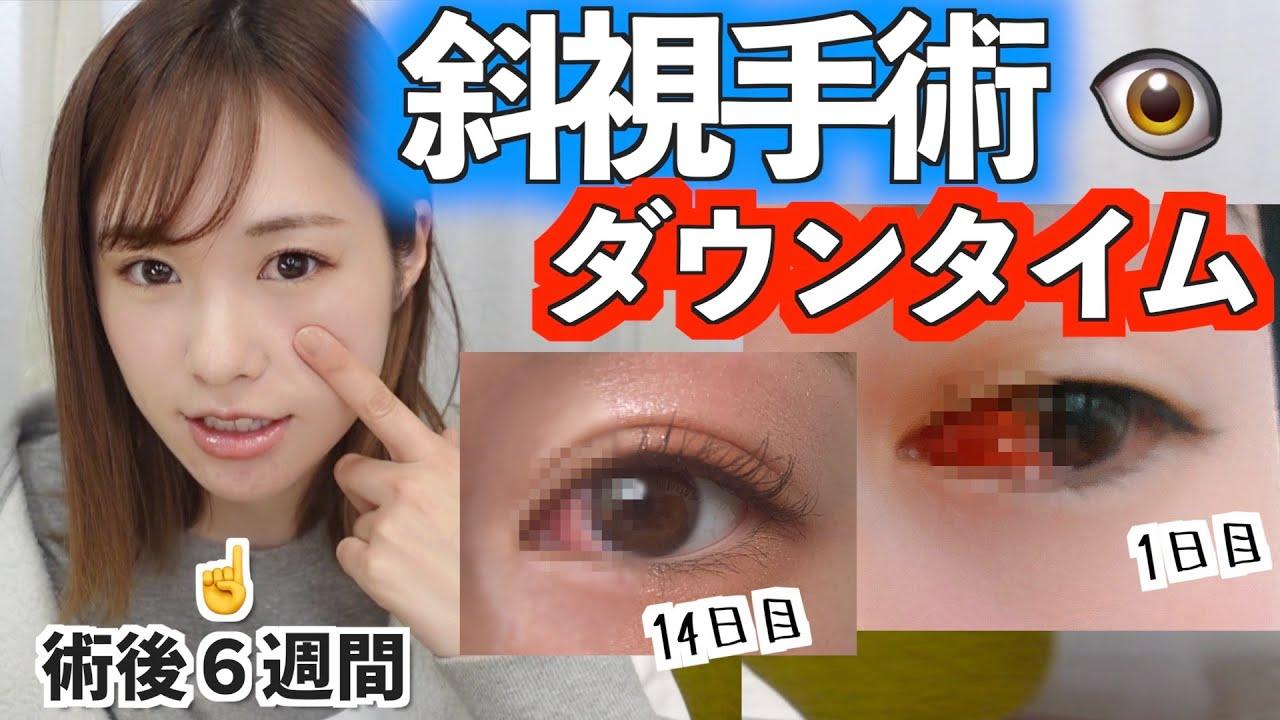 【経過は良好】斜視手術の術後の経過を写真で振り返ろう!【コンプレックス】