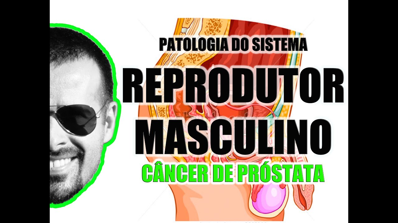 Câncer de próstata e o exame de toque retal - Sistema Reprodutor ...