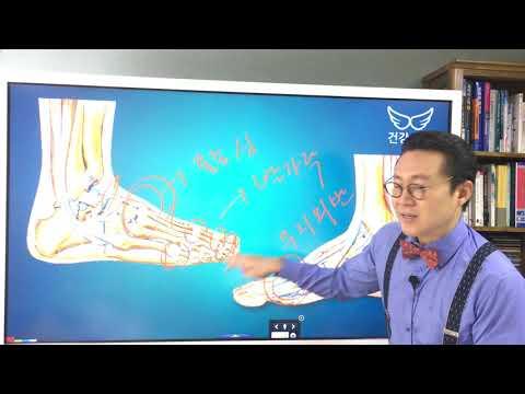 류마티스관절염 발등 붓기 있을 때 도움되는 운동법 관리법 Rheumatoid Arthritis