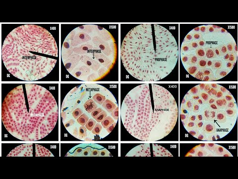 Onion Root Tip Cell Division Stages At Different Magnifications(X400,X675 & X1500)