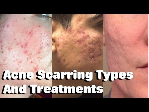 HOW TO TREAT ACNE SCARRING! Remove Mild, Moderate & Severe ...