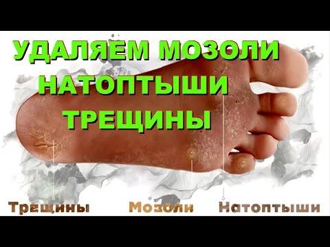Натоптыши на ногах (иначе говоря - огрубевшие участки кожи