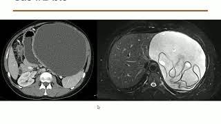 Le B.A. BA de l'IRM hépatique - M. RONOT