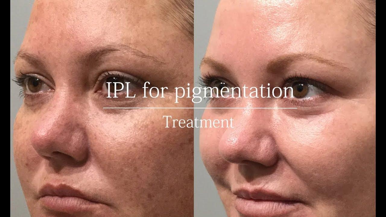 Ipl For Pigmentation Treatment Video Youtube