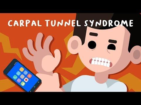 Akibat Main Hp Terlalu Banyak - Carpal Tunnel Syndrome