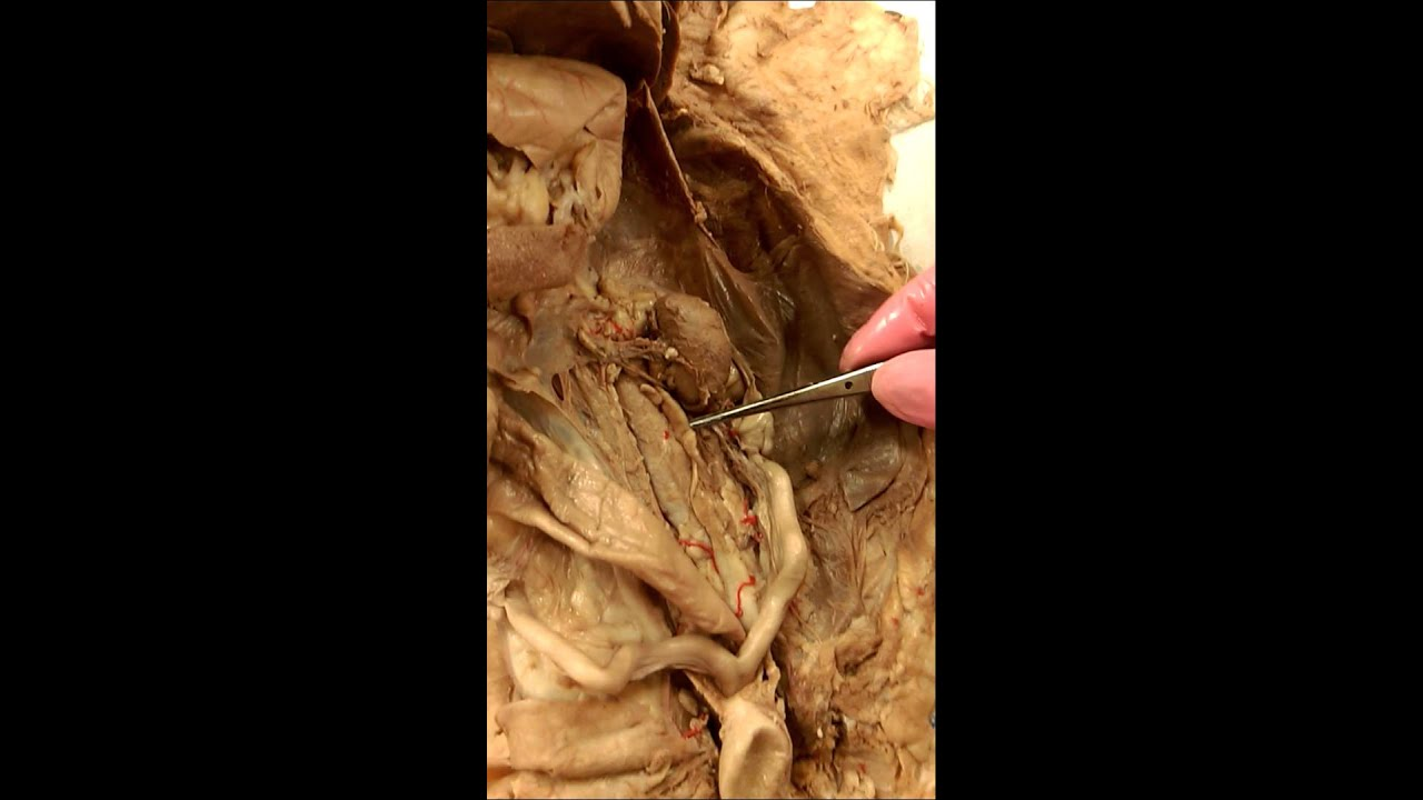 A&P 2 - Lab Practical 2 - Kidney Anatomy (2) - YouTube