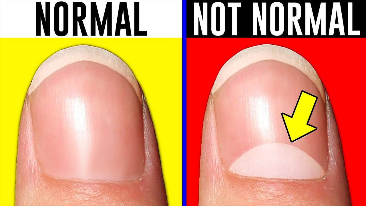 Download 10 Signs You're Actually Normal..