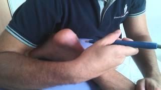 Sesion EPI en tendon en fisioterapia Jaén