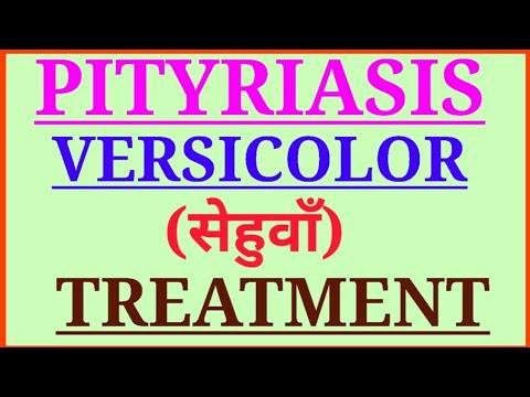सेहुवाँ का इलाज मात्र एक हप्ते में,Treatment Of Pityriasis Versicolor,कारण उपाय व सेहुवाँ का इलाज ।